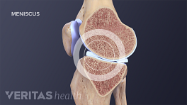 Cross section of the knee highlighting the meniscus