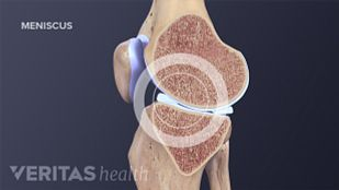 how to know if you have meniscus tear