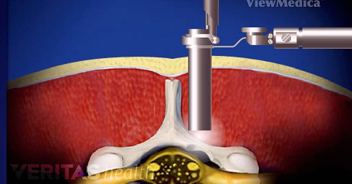 Microendoscopic Posterior Cervical Discectomy Video