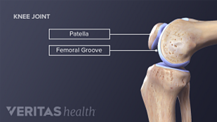 Anatomy illustration of the bone affected the patellofermoral alignment