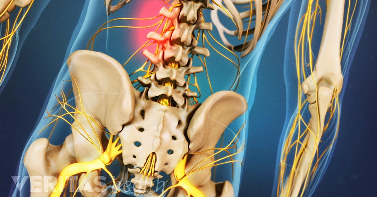 Baja espasmos en espalda los Cómo musculares la aliviar