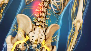 Muscle Strain