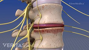 Spinal Infection Video