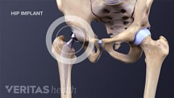 Medical illustration of a completed hip implant