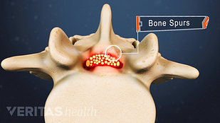 Animated video still of lumbar spinal stenosis and bone spurs