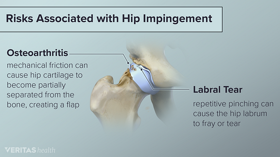 Hip impingement risks including osteoarthritis and labral tear.