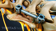 Screws and rods in two vertebra of the lumbar spine.