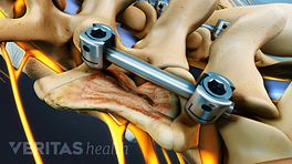 Spinal Fusion showing rods and pedicle screws placed on the fused vertebrae