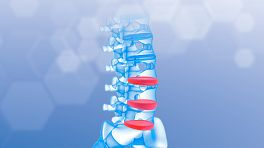 Anterior view of a lumbar spine highlighting the disc spaces.