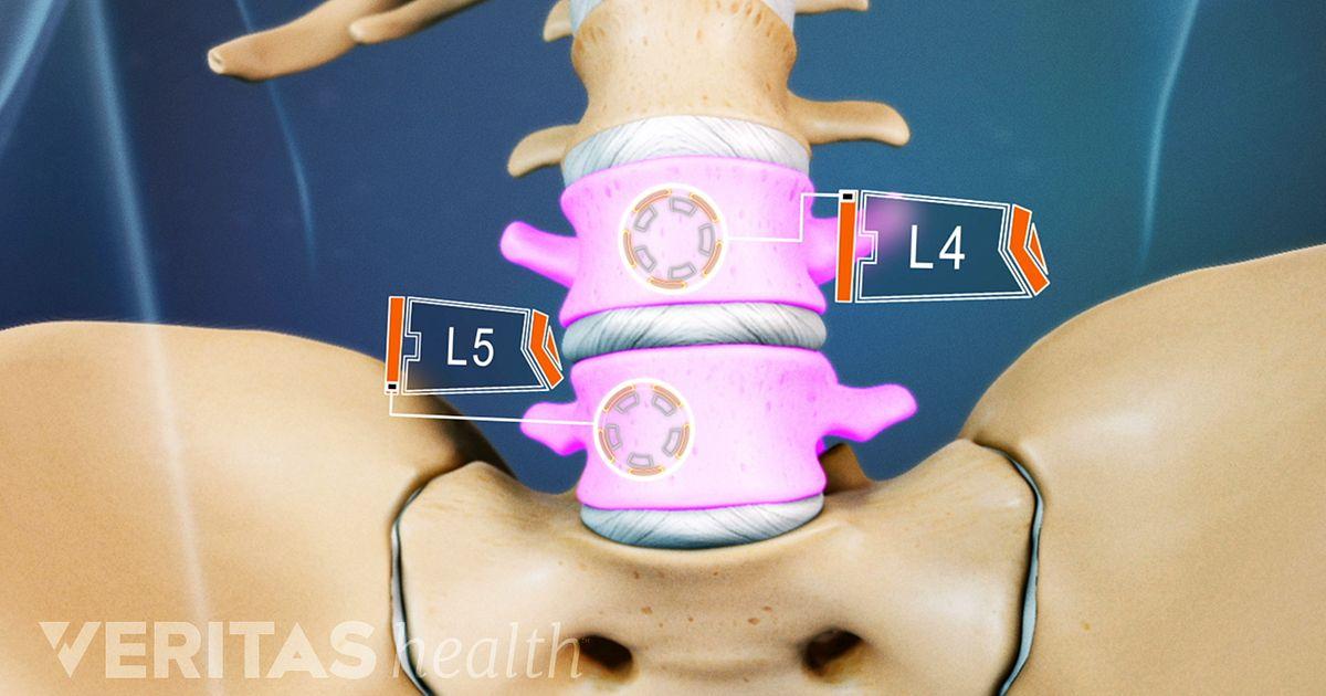 Todo sobre el segmento L4-L5 de la columna vertebral