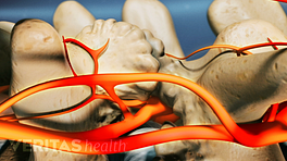 Pain in the medial branch nerves.