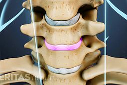 Neck Mobility Multi-Level Cervical Fusion