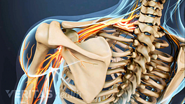 Posterior view of the upper back showing pain radiating in the shoulder