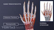 Rheumatoid Arthritis (RA) Symptoms