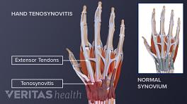 Illustration of tenosynovitis