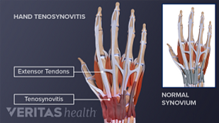 Illustration of tenosynovitis