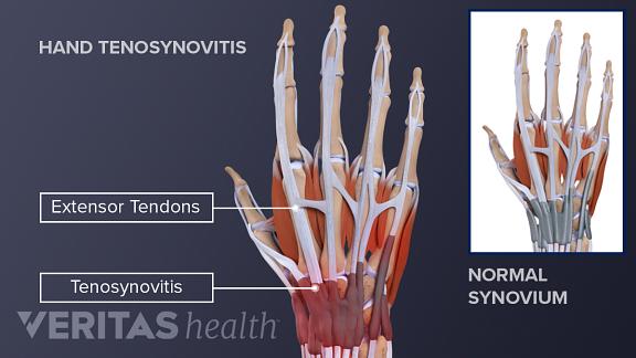 Lindsay wagner bionic nuide