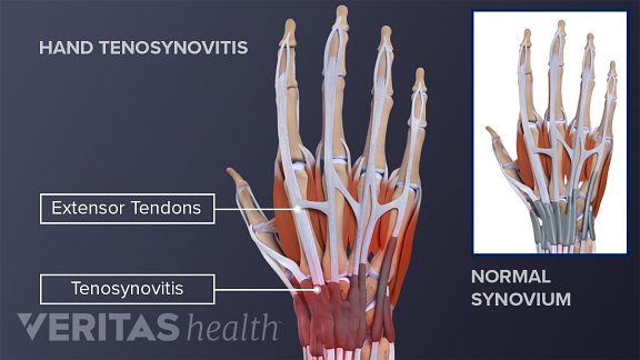 illustration of the anatomy of an adult hand with tenosynovitis of the flexor tendons