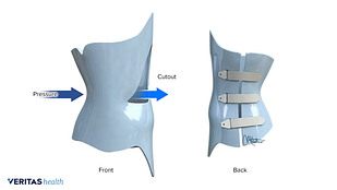 Medical illustration of a boston brace