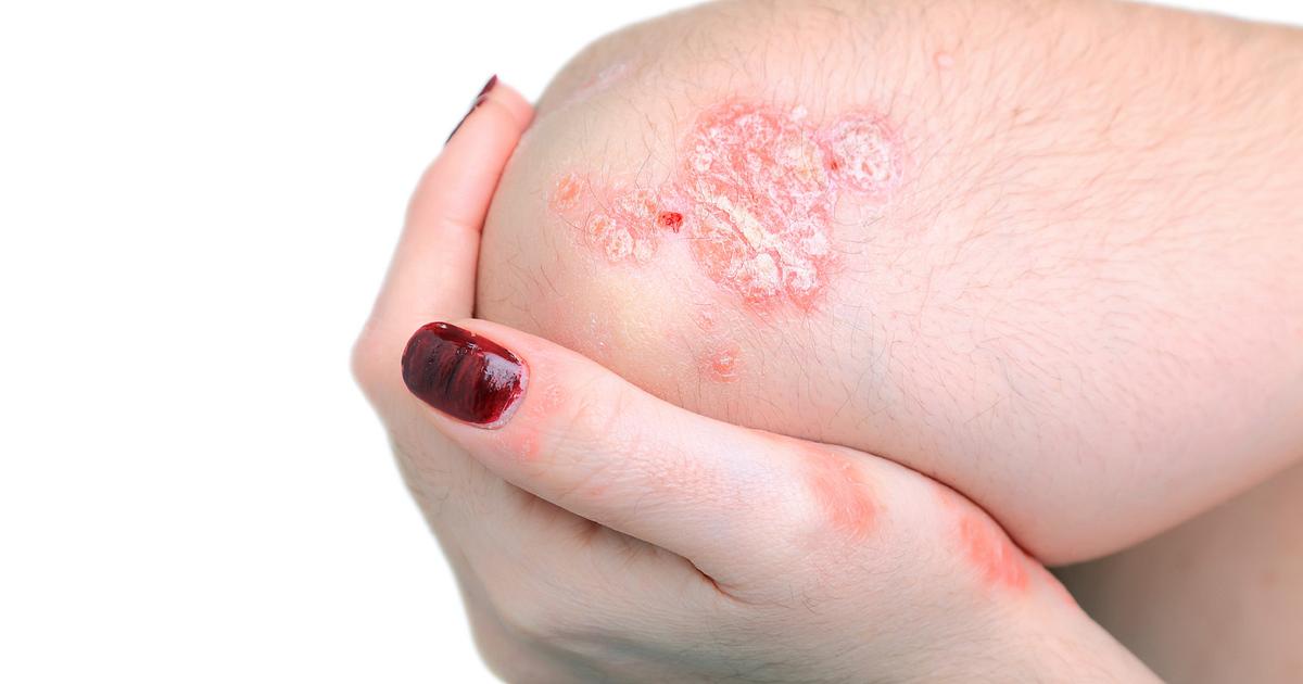 Reactive Arthritis Symptoms