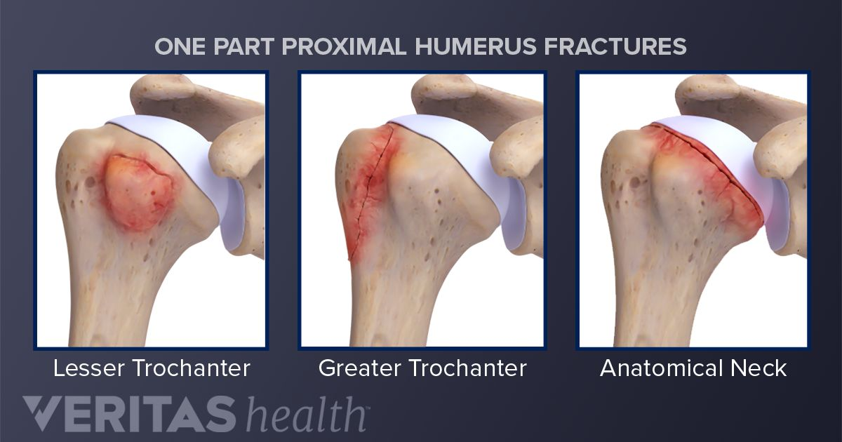 Proximal Humerus Fractures of the Shoulder