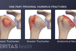 Proximal humerus fracture