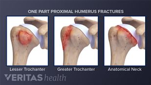 Examples of one part proximal humerus fractures