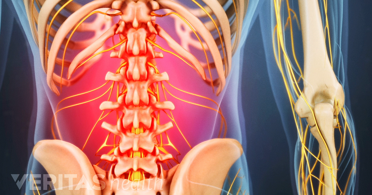 Back muscles and low back pain ccuart Choice Image