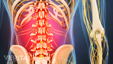 Posterior view of the lumbar spine with pain in lower back.