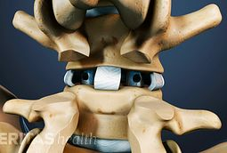 Posterior Lumbar Interbody Fusion (PLIF) Video