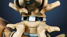 Posterior Lumbar Interbody Fusion (PLIF) Video