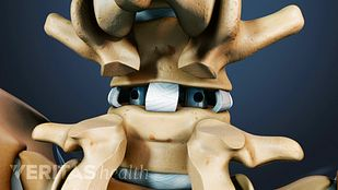 Spondylolisthesis Treatment