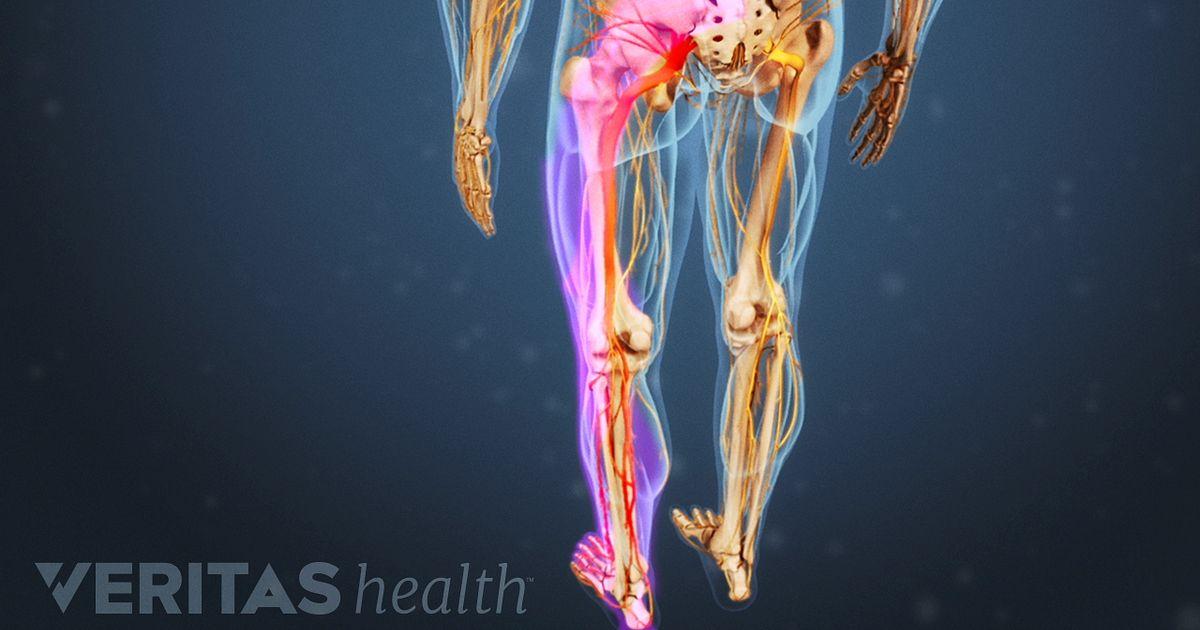 Sciatica  Articles And Videos On Sciatica Symptoms  Causes
