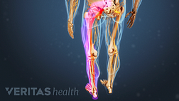 Medical illustration of the lower body, the sciatic nerve is highlighted in red to indicate pain, numbness or tingling.