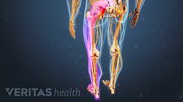 Sciatica Radiating Pain