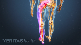 Animated video still depicting the the path of the sciatic nerve