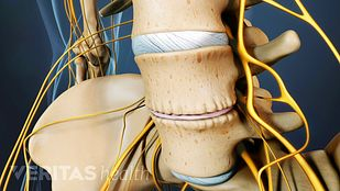 spinal osteoarthritis