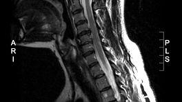 MRI Scan of the cervical spine