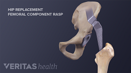 Illustration of a hip replacement with a femoral component rasp