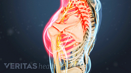 Medical illustration of the upper back. The shoulders are highlighted in red to indicate pain, numbness or tingling.