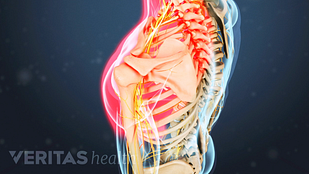 Animated video still highlighting shoulder pain from cervical radiculopathy in the neck