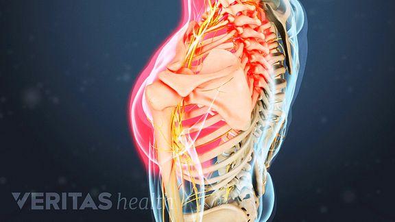 radiculopathy Save. A cervical herniated disc ...