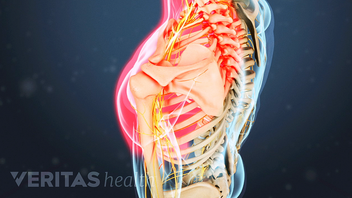 Cervical Herniated Disc Signs and Symptoms