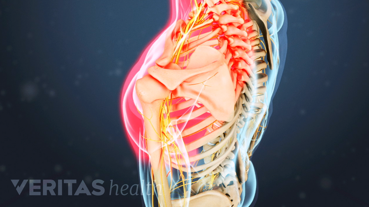 Medical illustration of the upper body, with one shoulder highlighted in red showing nerve pain in the shoulder and arm