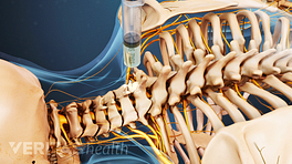 Posterior view of the cervical and thoracic spine showing epidural steroid injection.