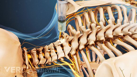 Cervical Nerve Block