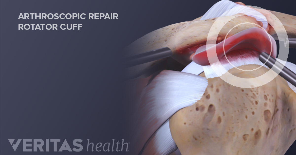 What Causes The Rotator Cuff To Tear