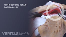 Arthroscopic repair of shoulder impingement