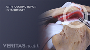 Illustration arthroscopic repair of shoulder impingement