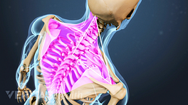 Medical illustration of the upper back and neck. The trapezius muscle is highlighted